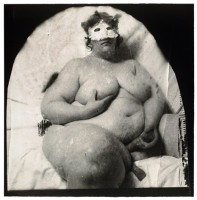 Peter WITKIN | Carrot Cake #1 | Photograph available for sale on www.kunzt.gallery
